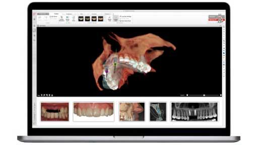 L'implantologia computer assistita