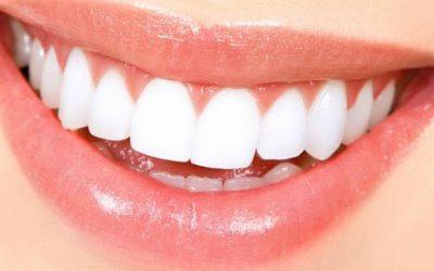 Denti da star grazie allo sbiancamento dentale